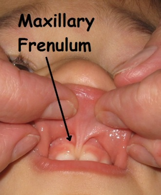 Bad Frenulum!  Bad, bad!